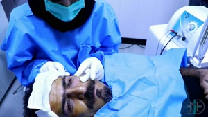 دستگاه جوانسازی پوست Endo-RF Subcision