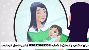 درمان قطعی ملاسما یا لک حاملگی بدون بازگشت