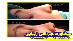 بهترین عمل جراحی زیبایی بینی