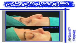 بهترین نمونه عمل جراحی زیبایی بینی