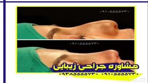 عمل جراحی زیبایی بینی مشهد