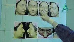 فیلم کامل جراحی بینی