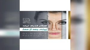 اصلاح انحراف تیعه بینی بعد از جراحی