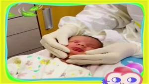 فیلم کشیدن دندان در کودک 12 روزه که با دندان متولد شده