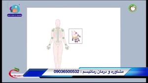 علائم رماتیسم مفصلی چیست