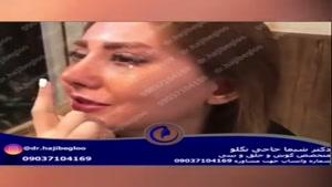 عمل زیبایی بینی دکتر شیما حاجی بگلو